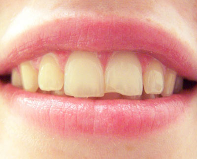 What Should I Do If I Chip My Tooth?