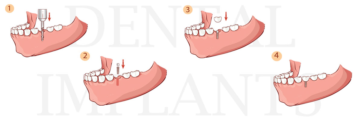 Long Valley The Difference Between Dental Implants and Mini Dental Implants