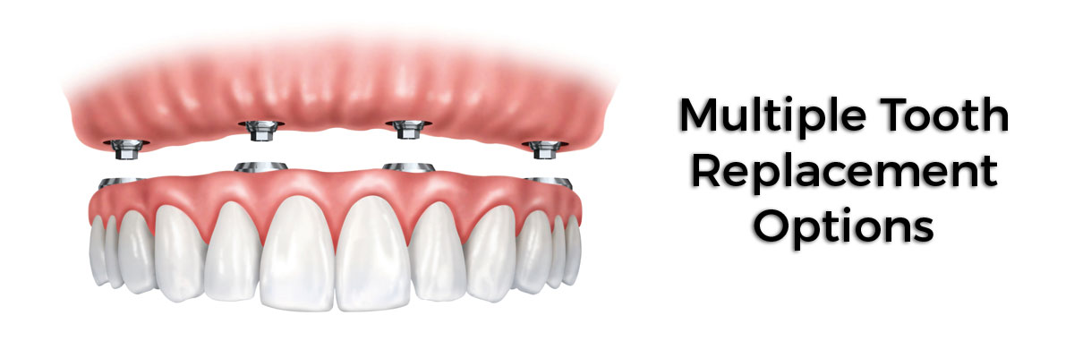 Long Valley Multiple Teeth Replacement Options