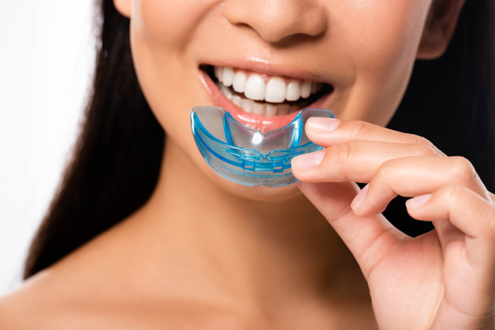 A woman is putting in her custom oral appliance for TMJ therapy.
